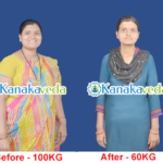 Mrs-Ranjana-Before & After