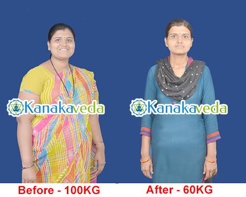 Mrs-Ranjana-Before & After